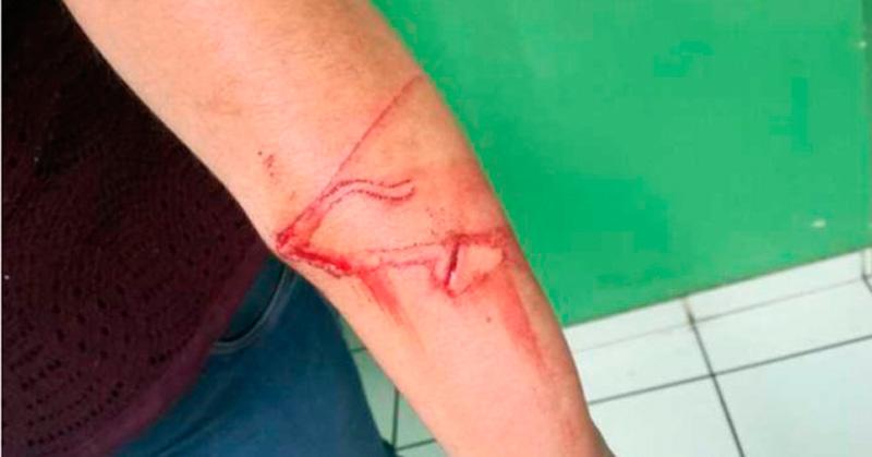 Niño de 10 años atacó con un cuchillo a su maestra